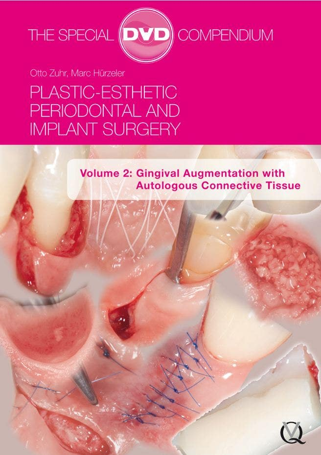 Plastic-Esthetic Periodontal and Implant Surgery (DVD-ROMs)