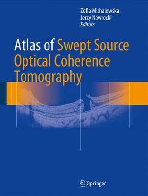 Atlas of Swept-Source Optical Coherence Tomography