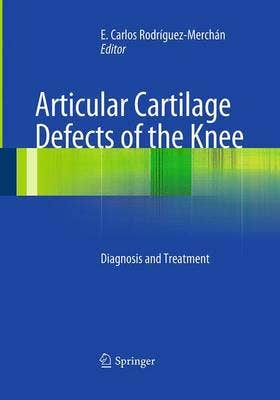 Articular Cartilage Defects of the Knee