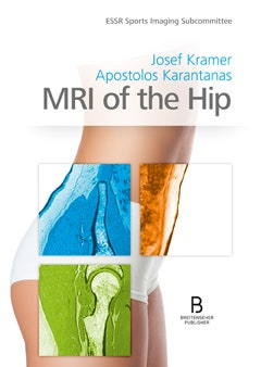 MRI of the Hip